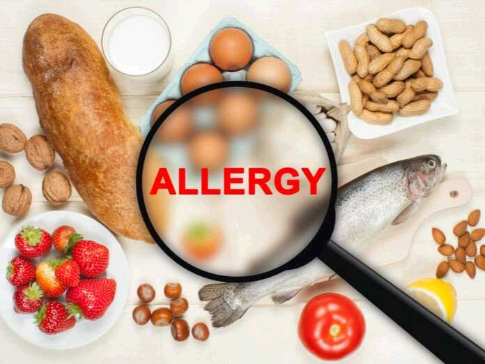 manage your food allergy